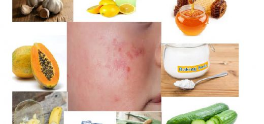 Home Remedies to cure Acne and Pimples naturally