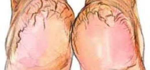 Simple easy natural and effective ways to cure cracked heels.