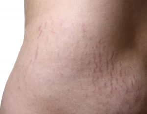natural remedies to get rid of stretch marks at home